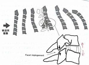 むち打ち頚椎の図